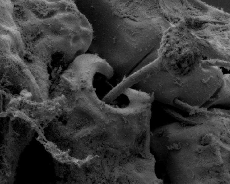 Pancířník Carabodes labyrinthicus (Michael, 1879) – detailní pohled na bothridium s paličkovitým sensilem v zadní části prodorsa, velmi důležitý určovací znak, foto Josef Starý.